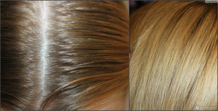 Как обесцветить волосы в домашних условиях перекисью